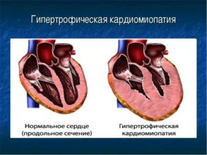 гипертрофической кардиомиопатии у кошек